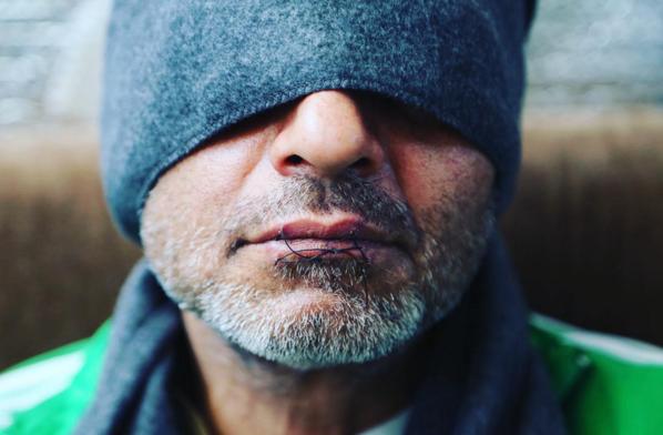 Hunger striker in Calais